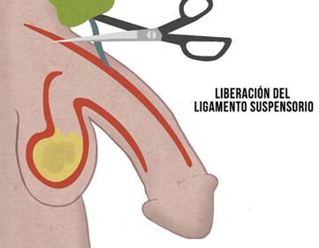 cortar ligamento del pene